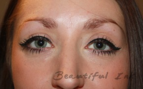 Before - Her previously plucked eyebrow shape