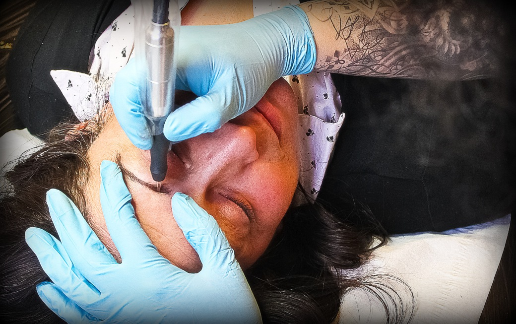 Tattoo Removal Brighton