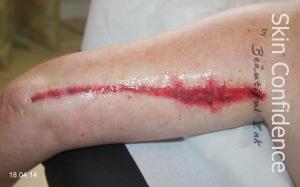 Arm Lift Surgery Brachioplasty Scars Reduction
