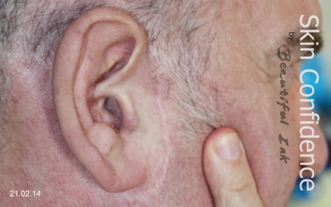 Facelift scar treatment