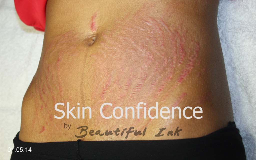 New stretch mark treatments