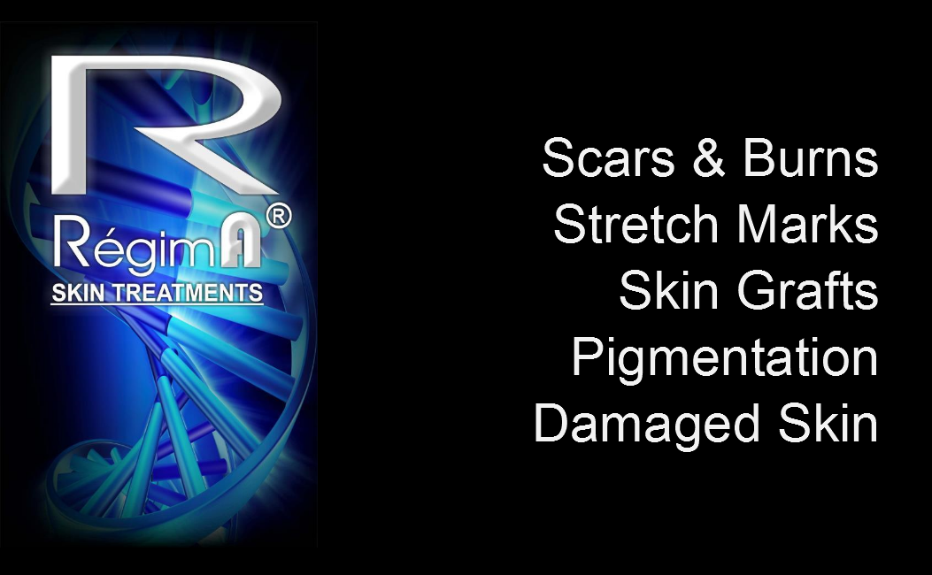 Scars, Burns & Stretch Marks