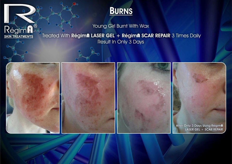 RegimA Scar Repair Before & After