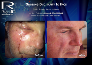 RegimA Scar Repair Before and after