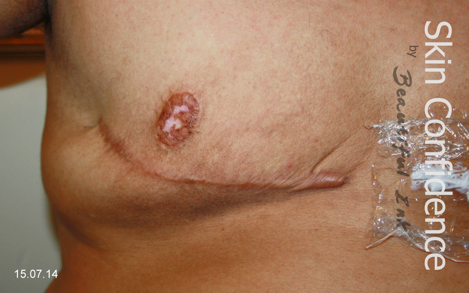 Skin of tit removal
