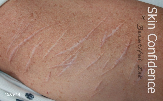 Self Injury Scars, Before & After Treatment (1)