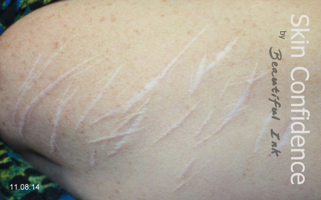 Self Injury Scars, Before & After Treatment (2)