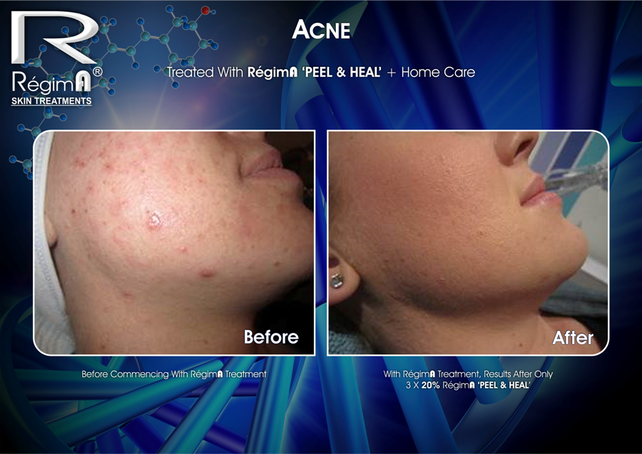RegimA Acne Peel Before and After