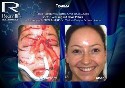 RegimA Peel & Heal 10
