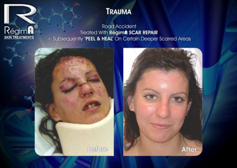 RegimA Peel & Heal 9