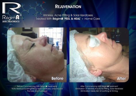 Regima Peel & Heal