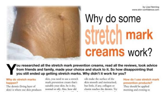 Why do some stretch mark creams work ?