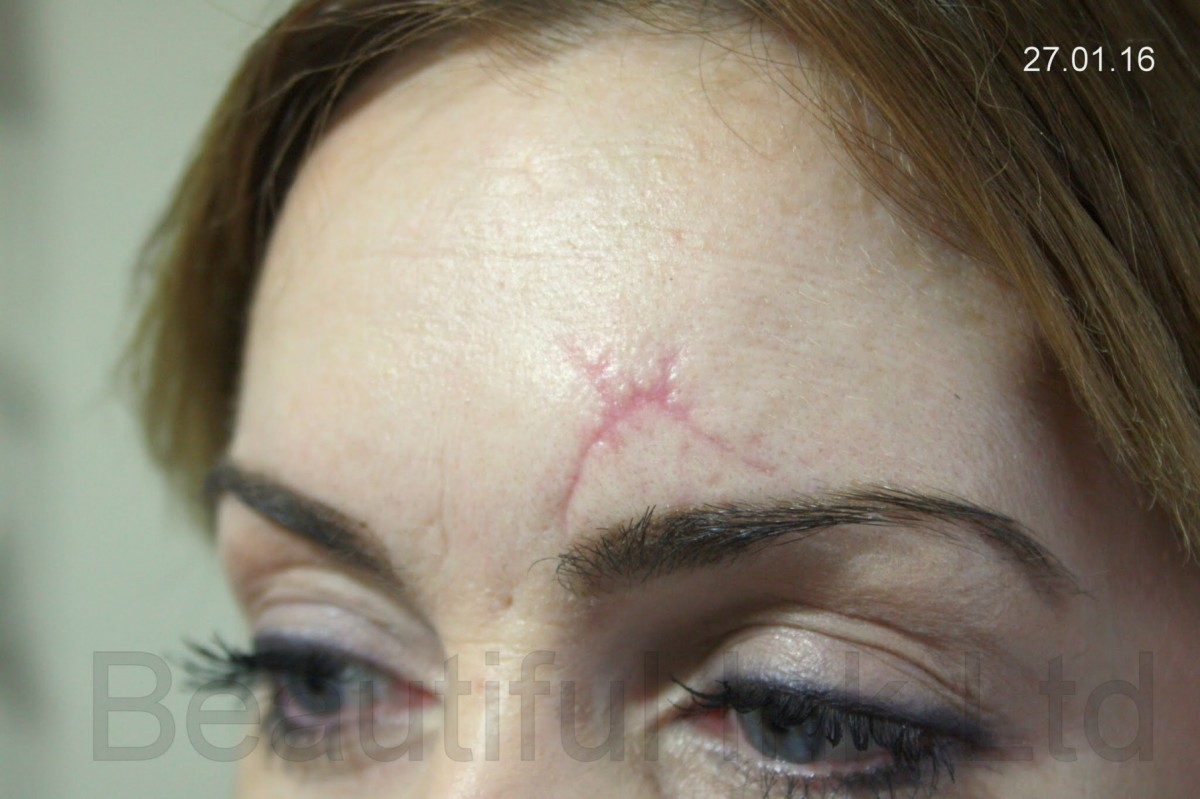 Scar treatment dry tattooing scars and stretch marks for Saline tattoo removal