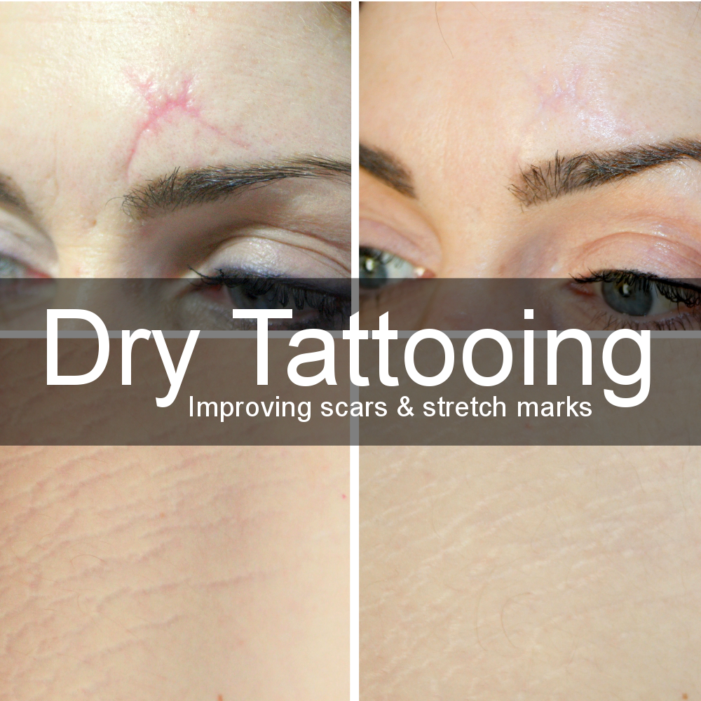 Dry Tattooing Square